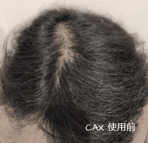 CAX 使用前